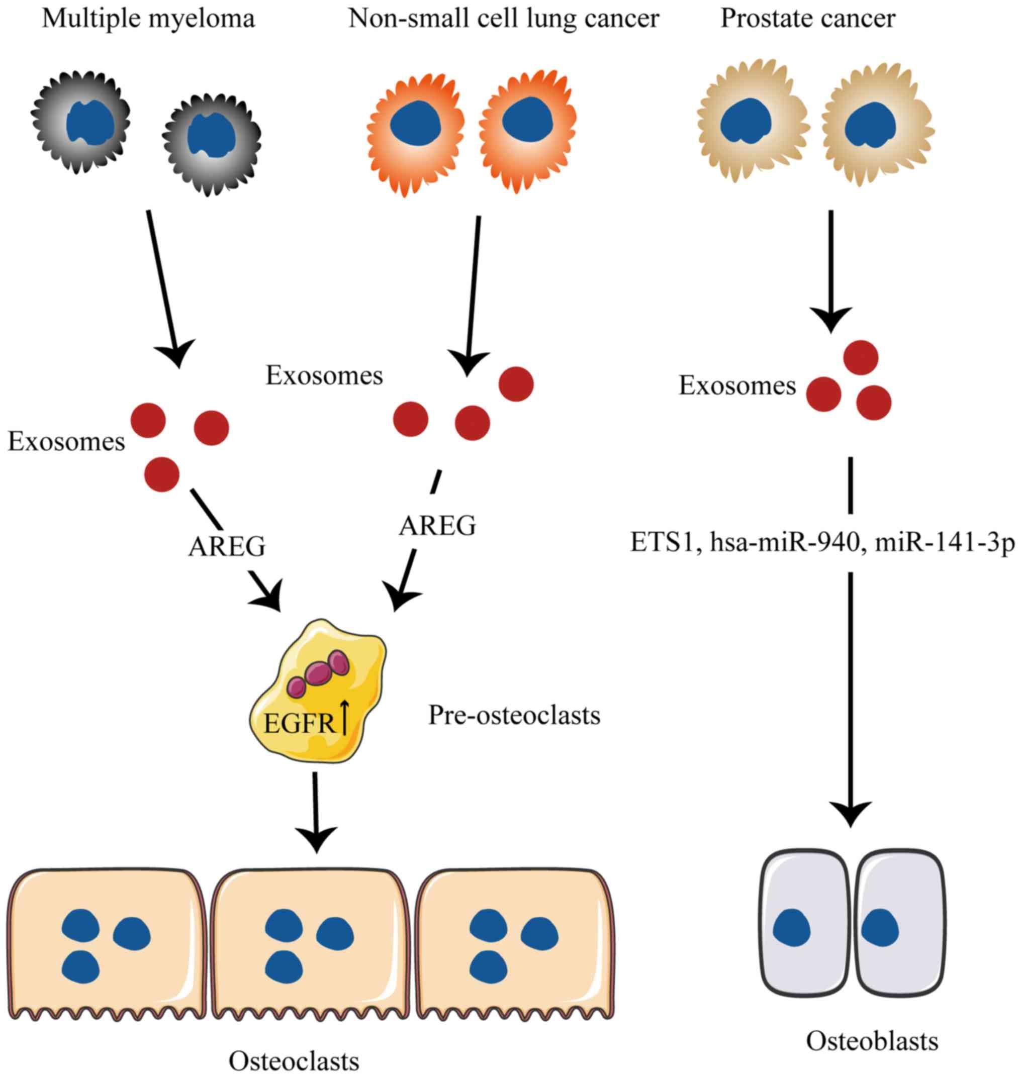 prostata tumore metastasis
