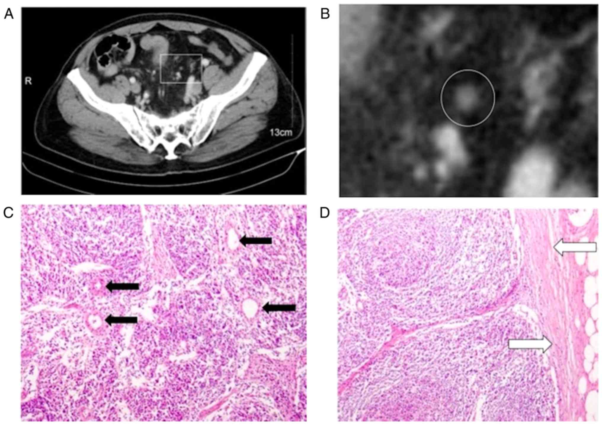 Contrast Enhanced Ct Imaging For The Assessment Of Lymph Node Status In Patients With Colorectal Cancer