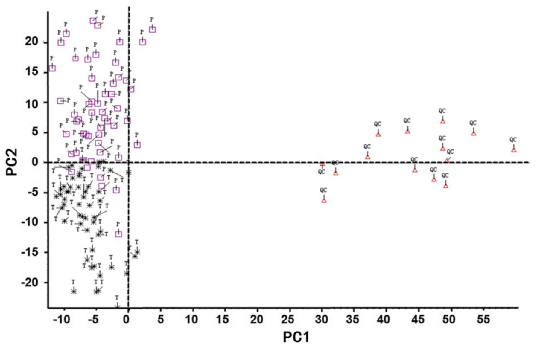 Profiling Of Serum Metabolites In Advanced Colon Cancer Using Liquid Chromatography Mass Spectrometry