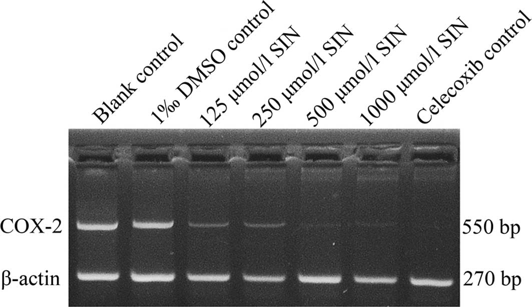 Sinomenine inhibits proliferation of SGC-7901 gastric adenocarcinoma