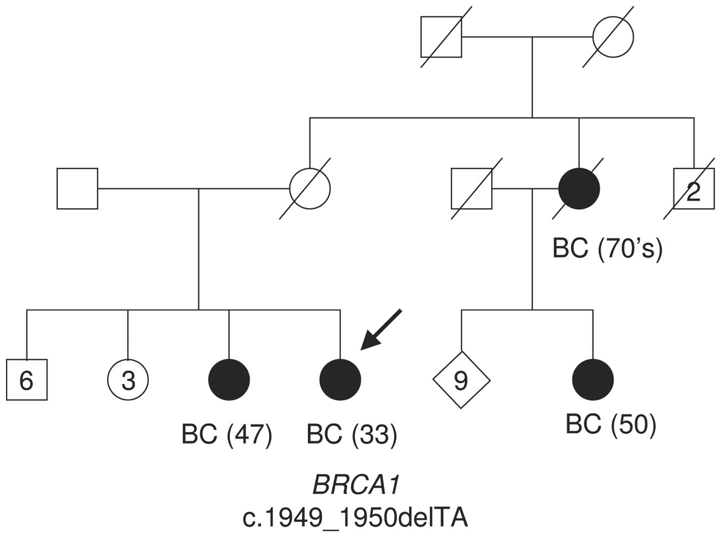 breast cancer 1 early onset gene analysis The association between prostate cancer and breast cancer in the same family may be explained, in part, by the increased risk of prostate cancer among men with brca1/brca2 pathogenic variants in the setting of hereditary breast/ovarian cancer or early-onset prostate cancer[31-34] (refer to the brca1 and brca2 section of this summary for more.