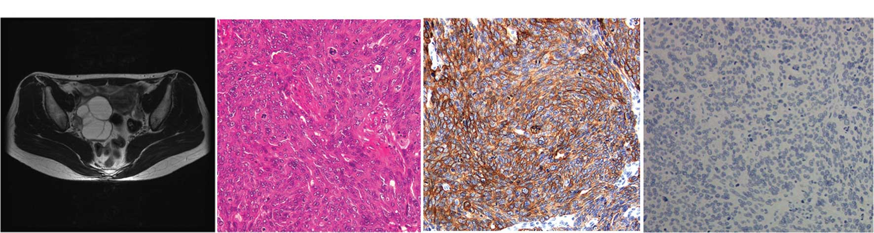 Transitional Cell Carcinoma Of The Ovary Review
