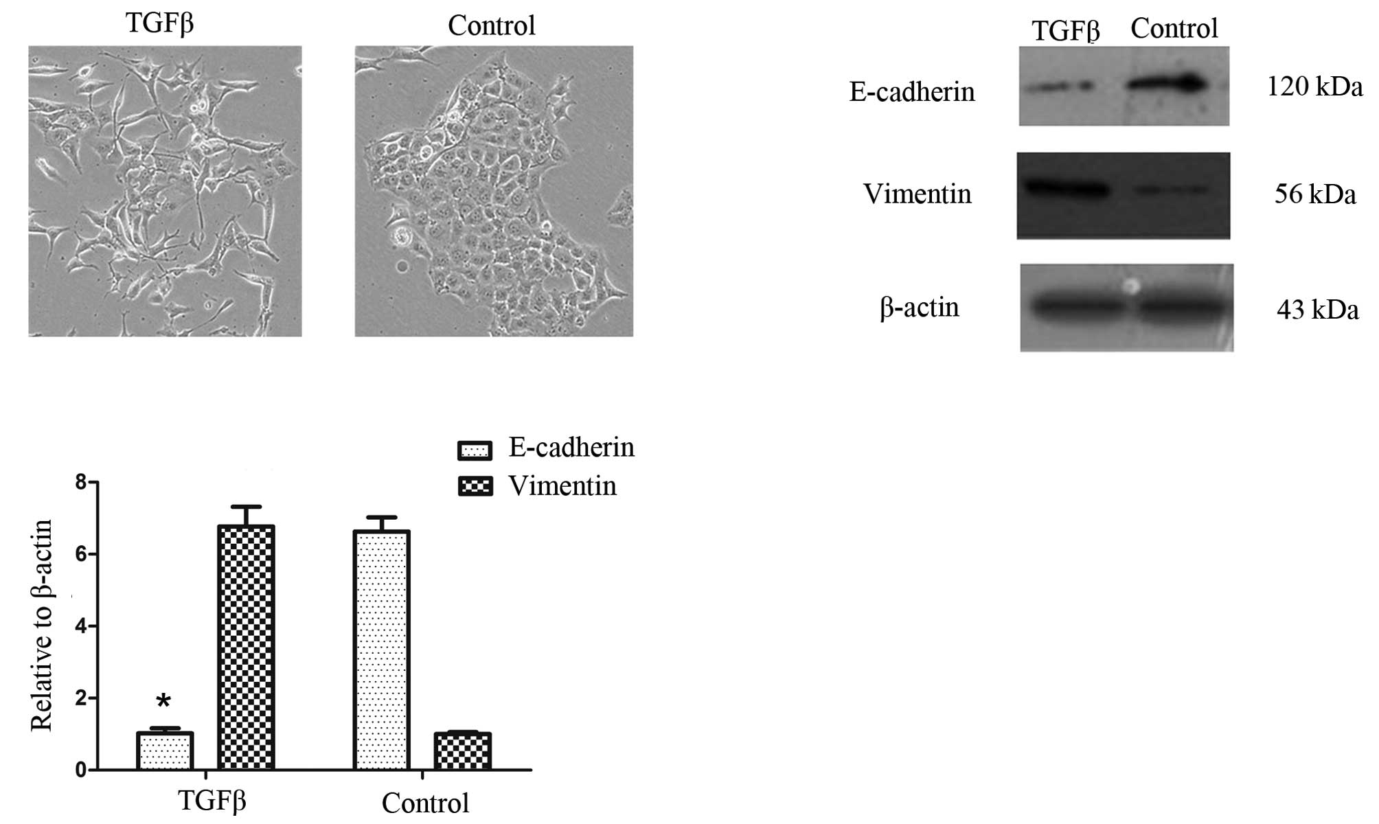 Transforming Growth Factor Induced Epithelial