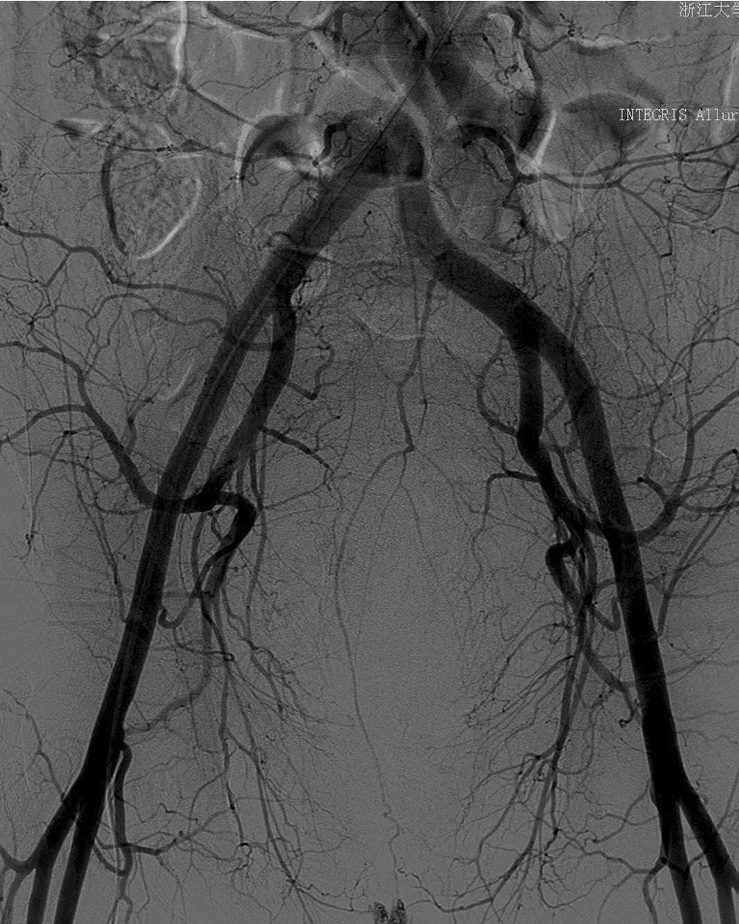 Superselective Internal Iliac Arterial Embolization For Severe