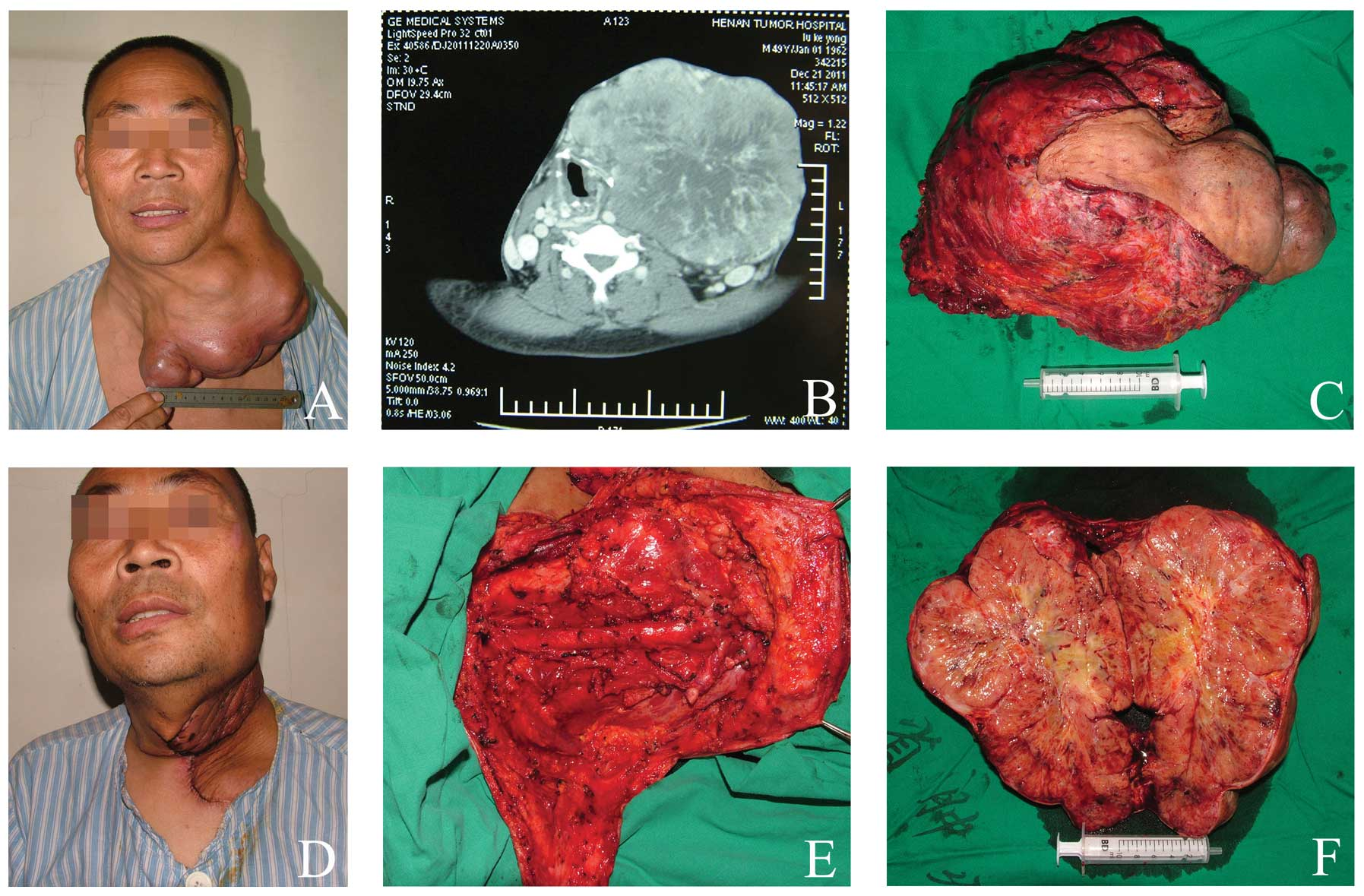 Intra And Postoperative Complications In 137 Cases Of Giant