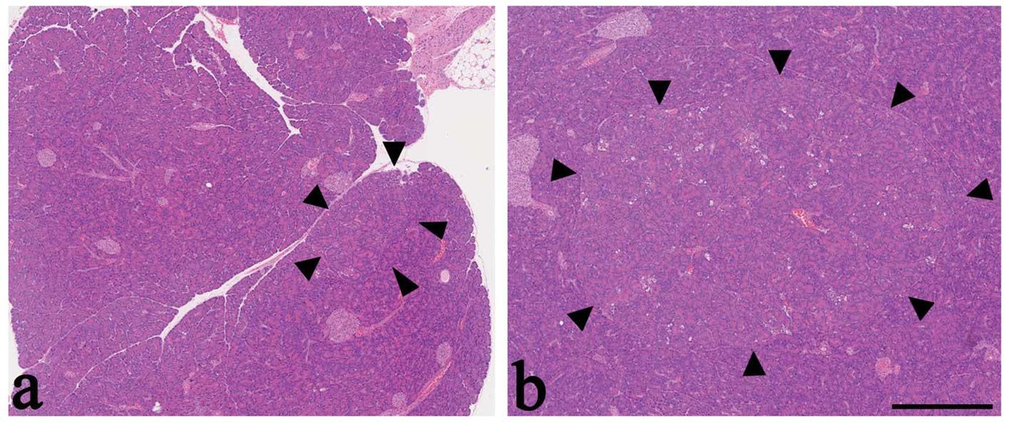 Promoting Effect Of Arachidonic Acid Supplementation On Nmethyln