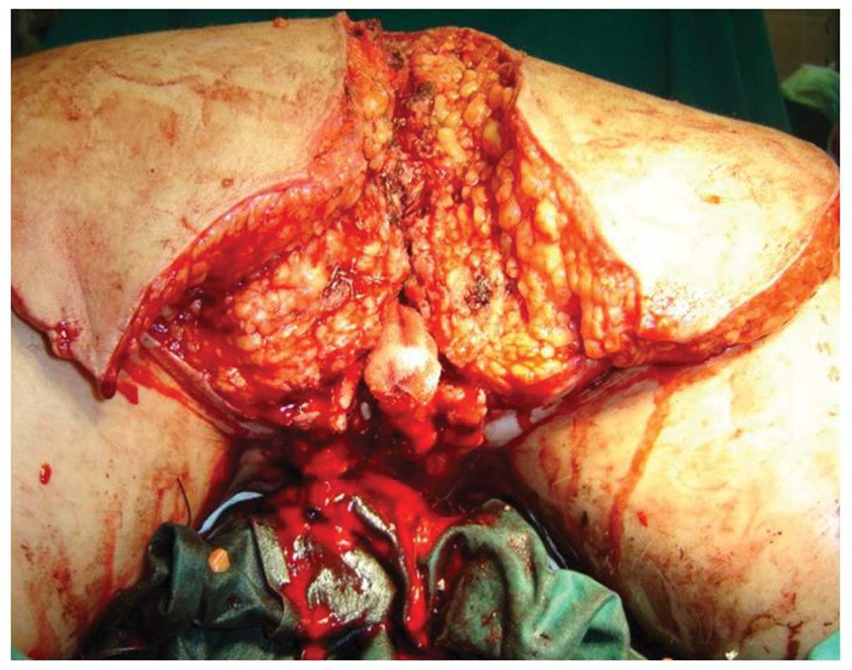 Oncology LettersA surgical approach to giant condyloma (Buschke‑Löwenstein tumour) with underlying superficial vulvar carcinoma: A case report
