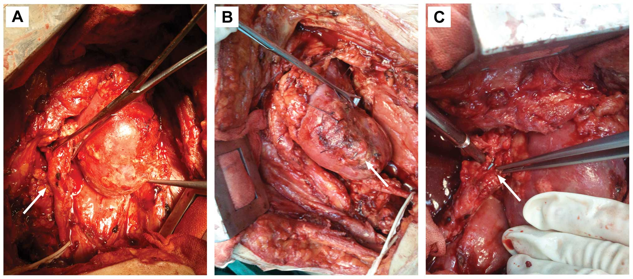 Ureteral Obstruction And Urinary Fistula Due To Fibrin Glue After