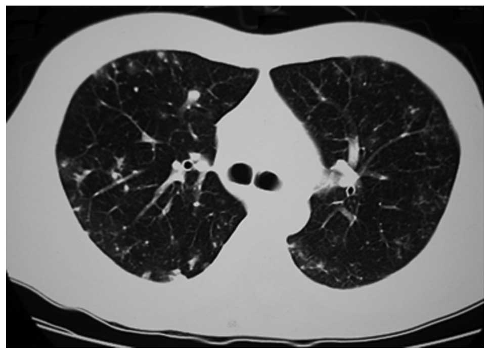 ground glass lung nodule guidelines