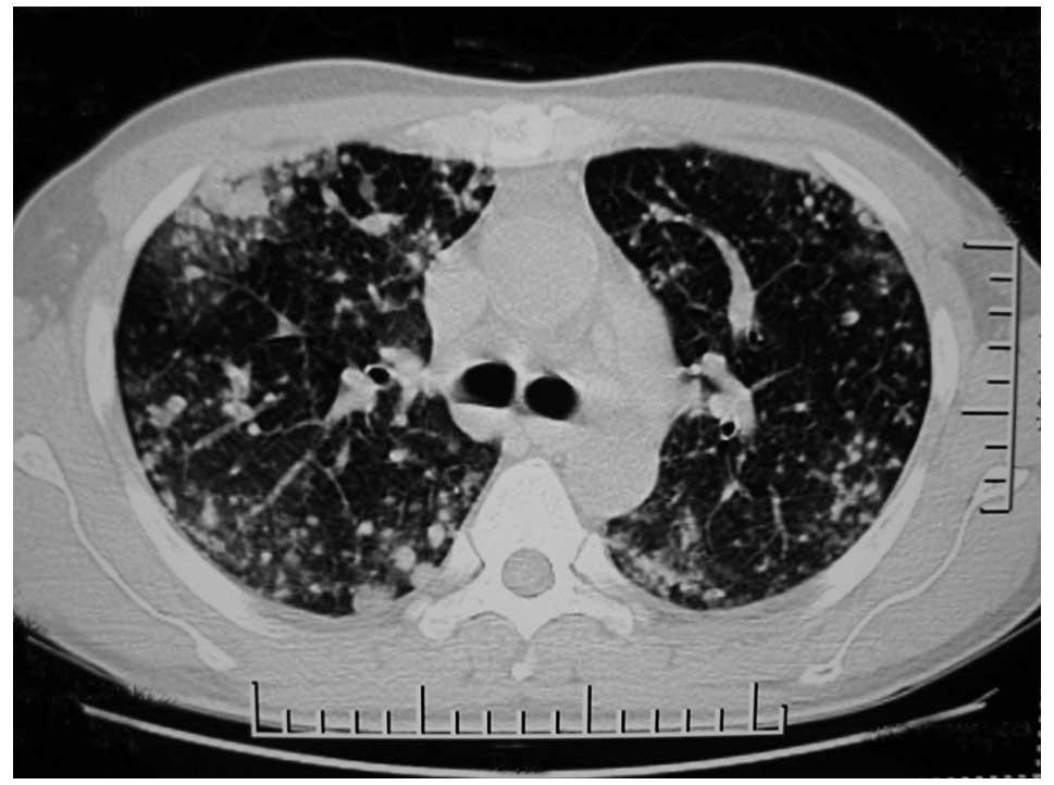 treatment of pulmonary epithelioid hemangioendothelioma