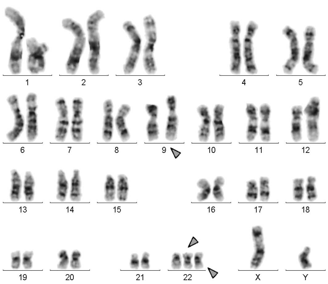 Multiple Ring Chromosome