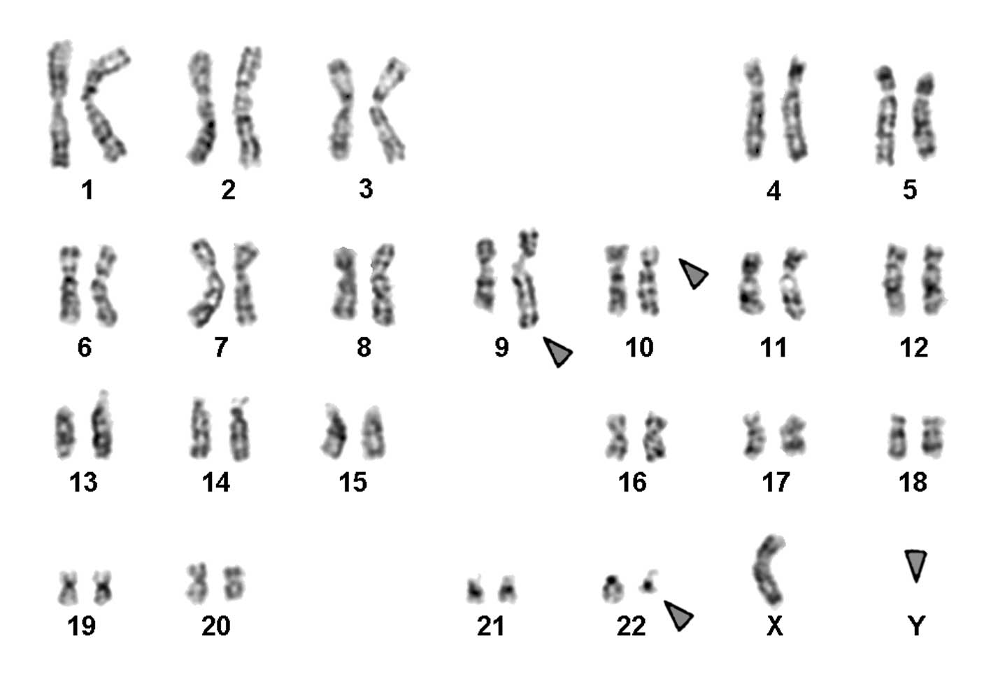 Figure 1 GTG Banding Revealed A Complex Karyotype Involving Three Chromosomes As Well The Loss Of Y Chromosome All Derivative Are