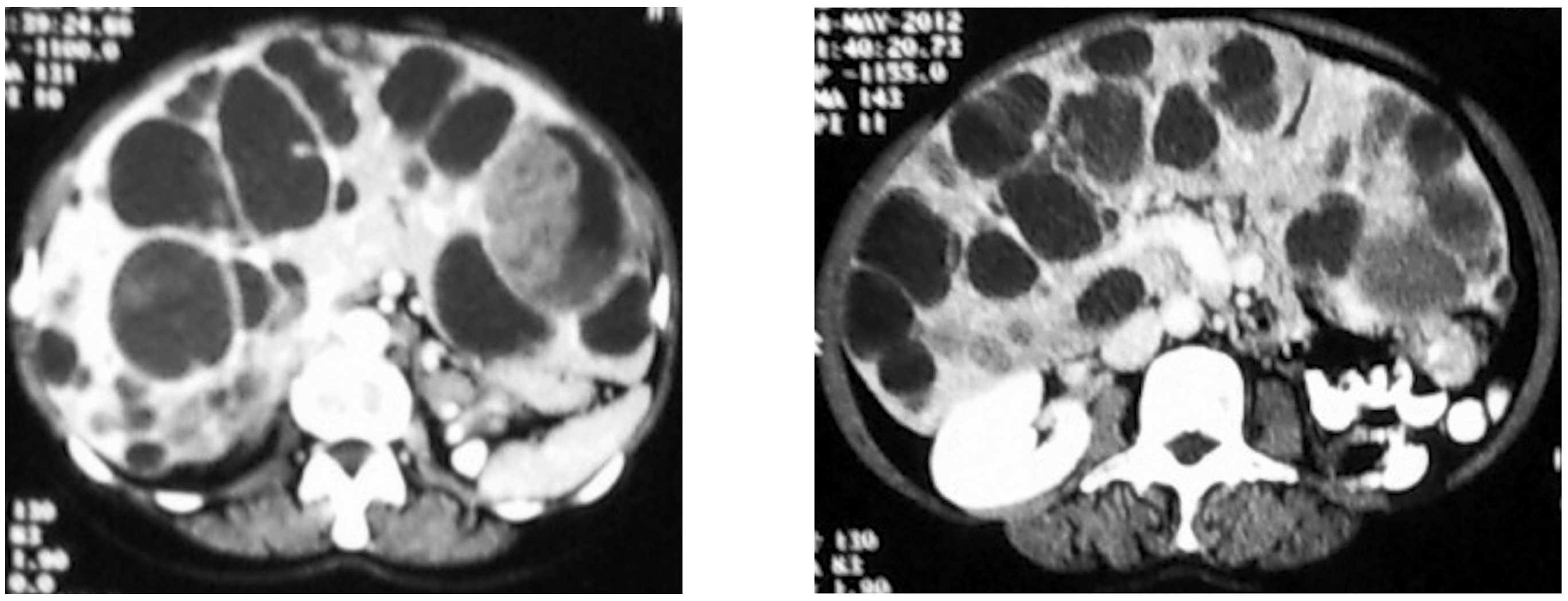 neuroendocrine cancer liver