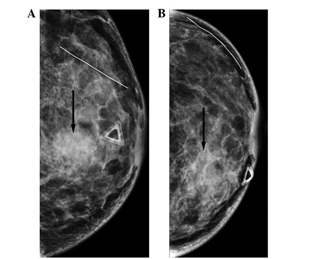 5 mm mass left breast