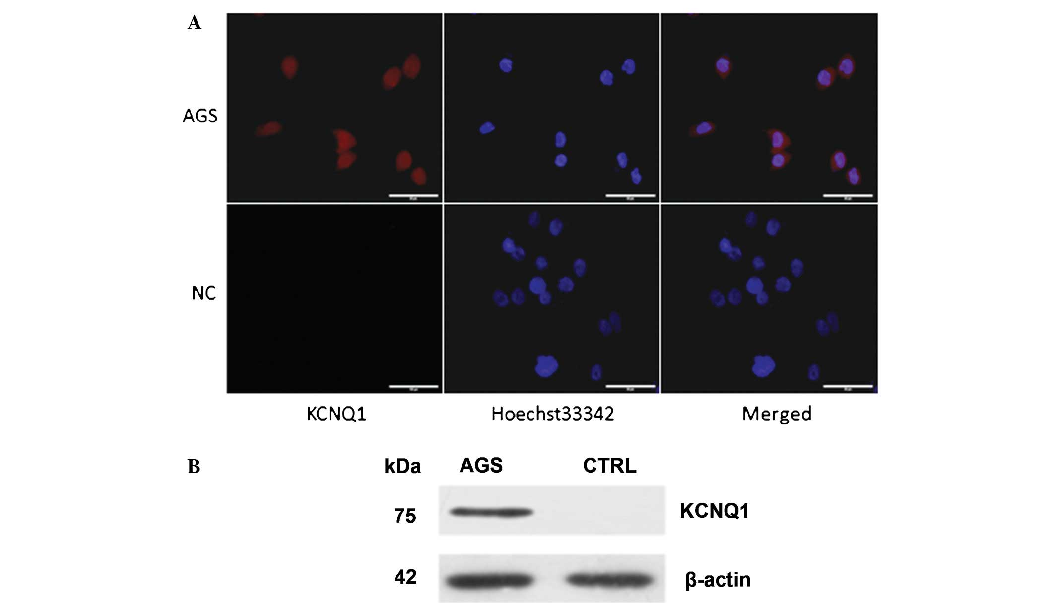 human gastric adenocarcinoma cell line essay Overexpression of egfr is associated with gastric adenocarcinoma  growth factor receptor in human  7 cell line is an easy source for the.