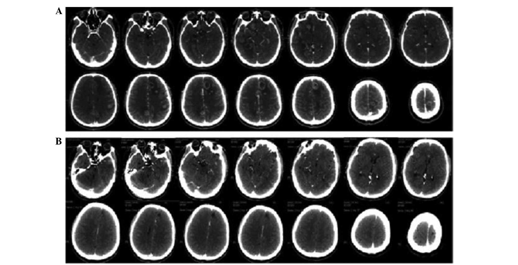 Cyberknife Therapy Of 24 Multiple Brain Metastases From