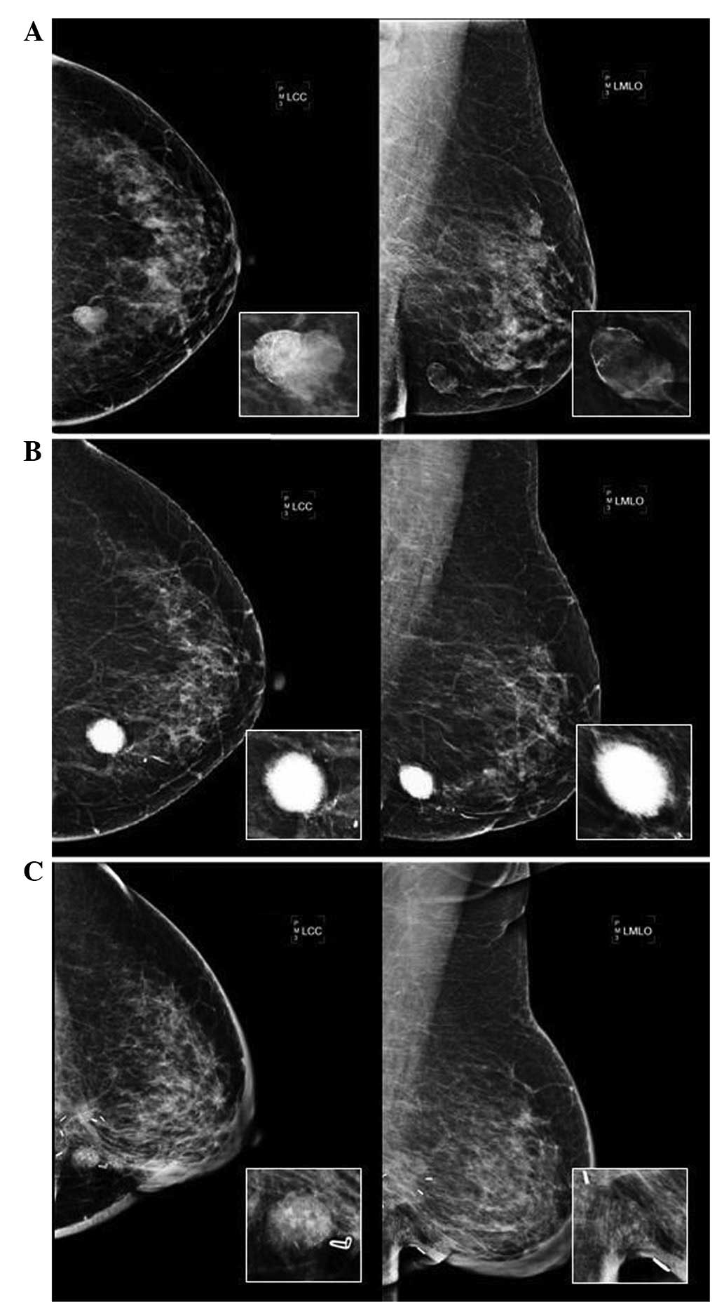 Metaplastic carcinoma of the breast with transformation from ...