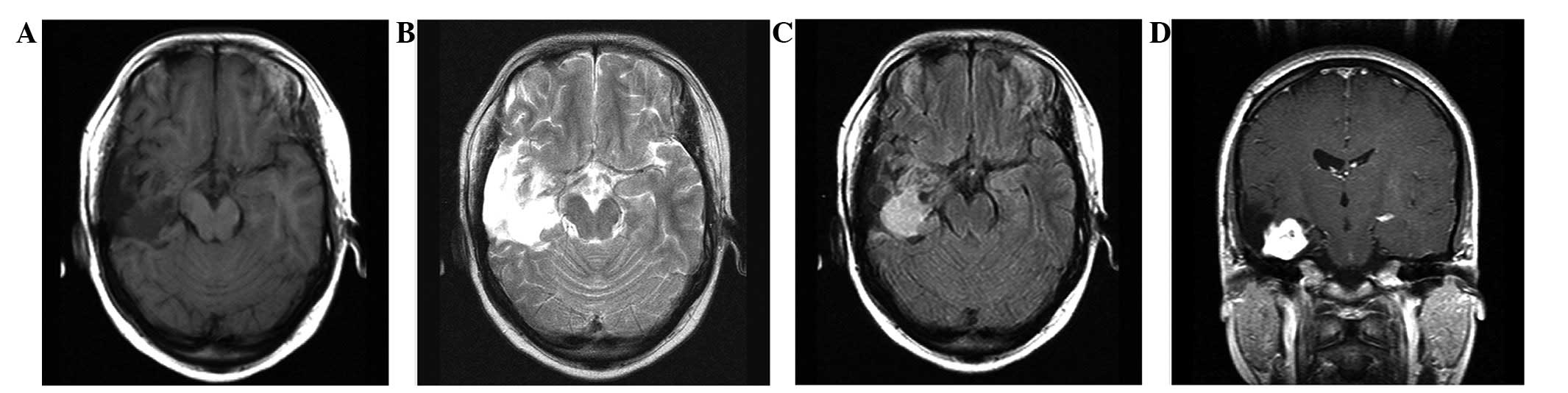 recurrence  histological evolution  dysembryoplastic neuroepithelial tumor  case report