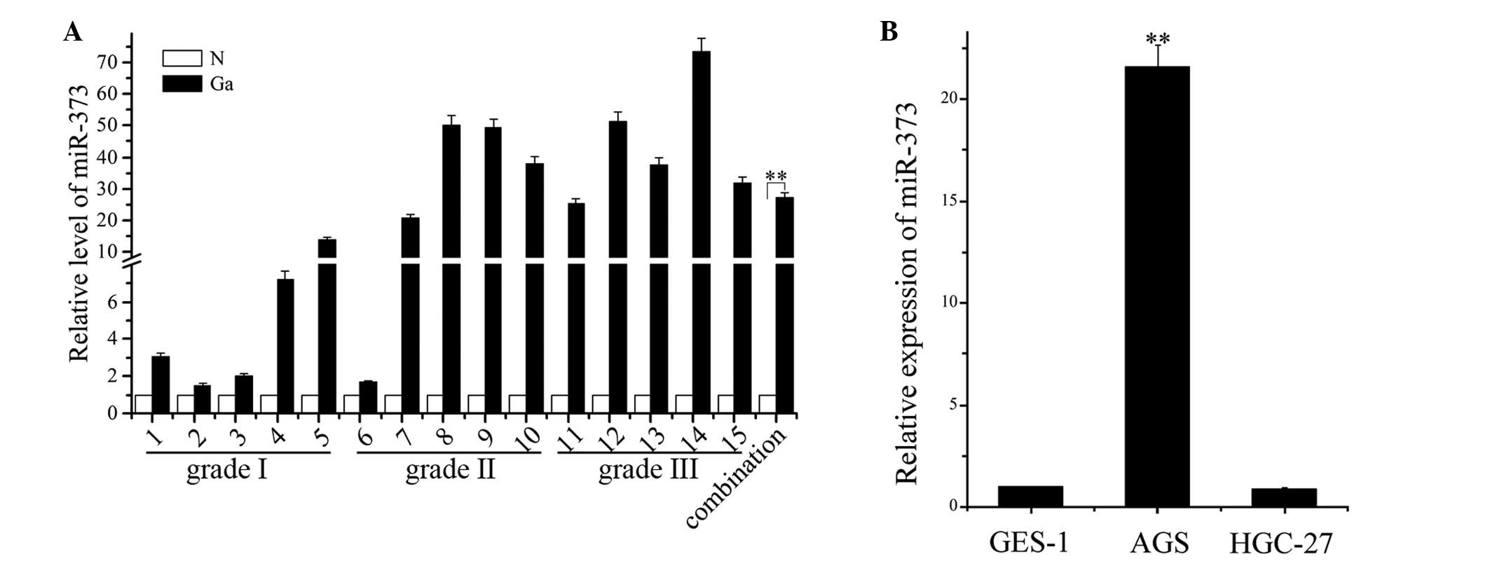 human gastric adenocarcinoma cell line essay For providing some experimental basis in establishing malignant phenotypic reversed indexes of gastric carcinoma cells, human gastric adenocarcinoma cell line mgc80-3 was induced by dbcampin vitro to appraise the effect of gastric carcinoma cell differentiation by chemical inducers.