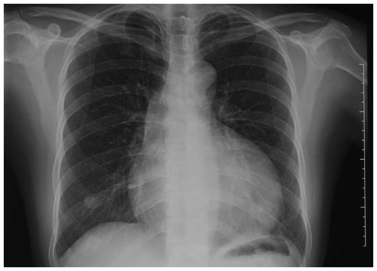 Thorax Overview as well Respiratory Ch 22 together with 9 further 2489982 as well Mucormycosis. on mediastinum of heart