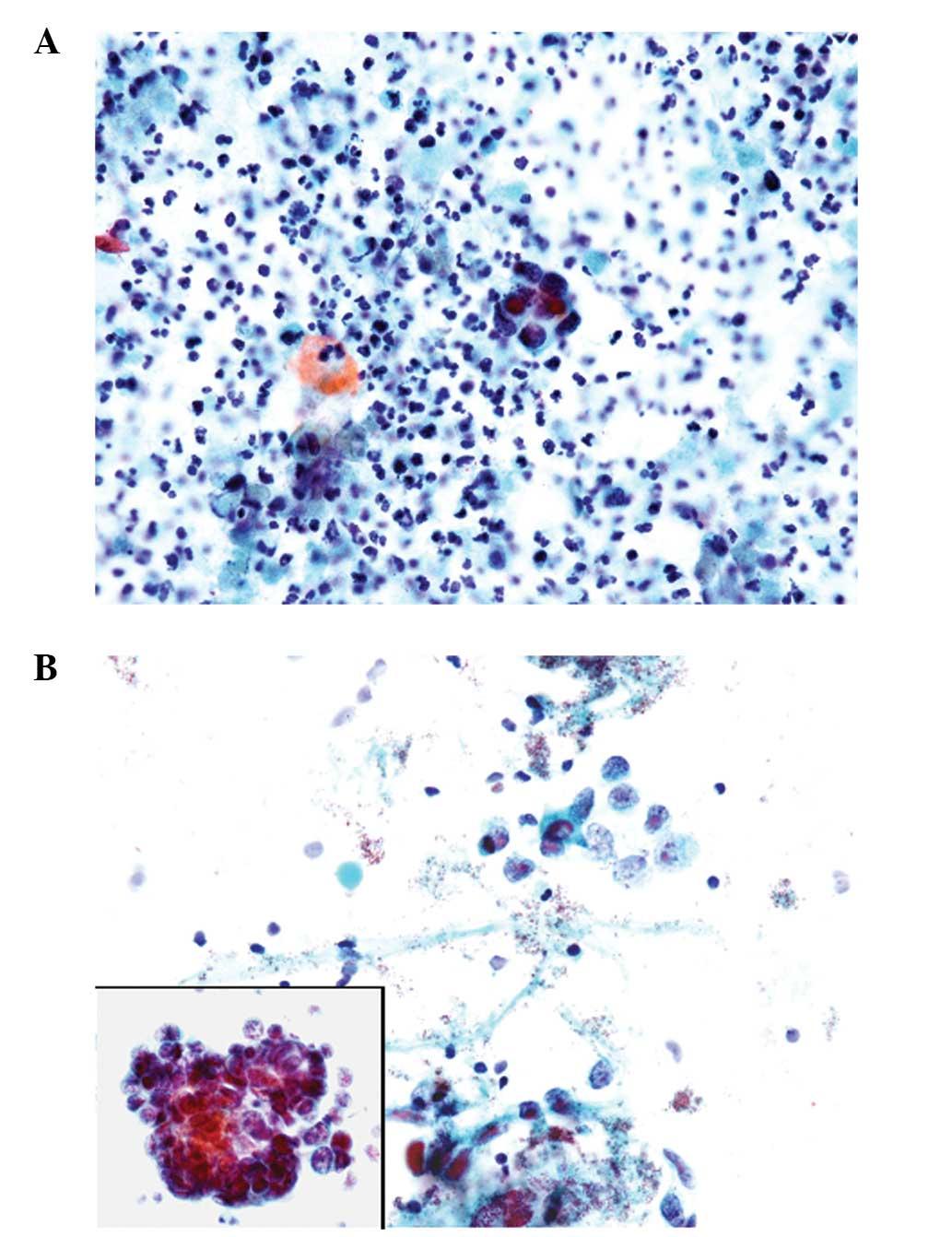 prostate adenocarcinoma cytology)