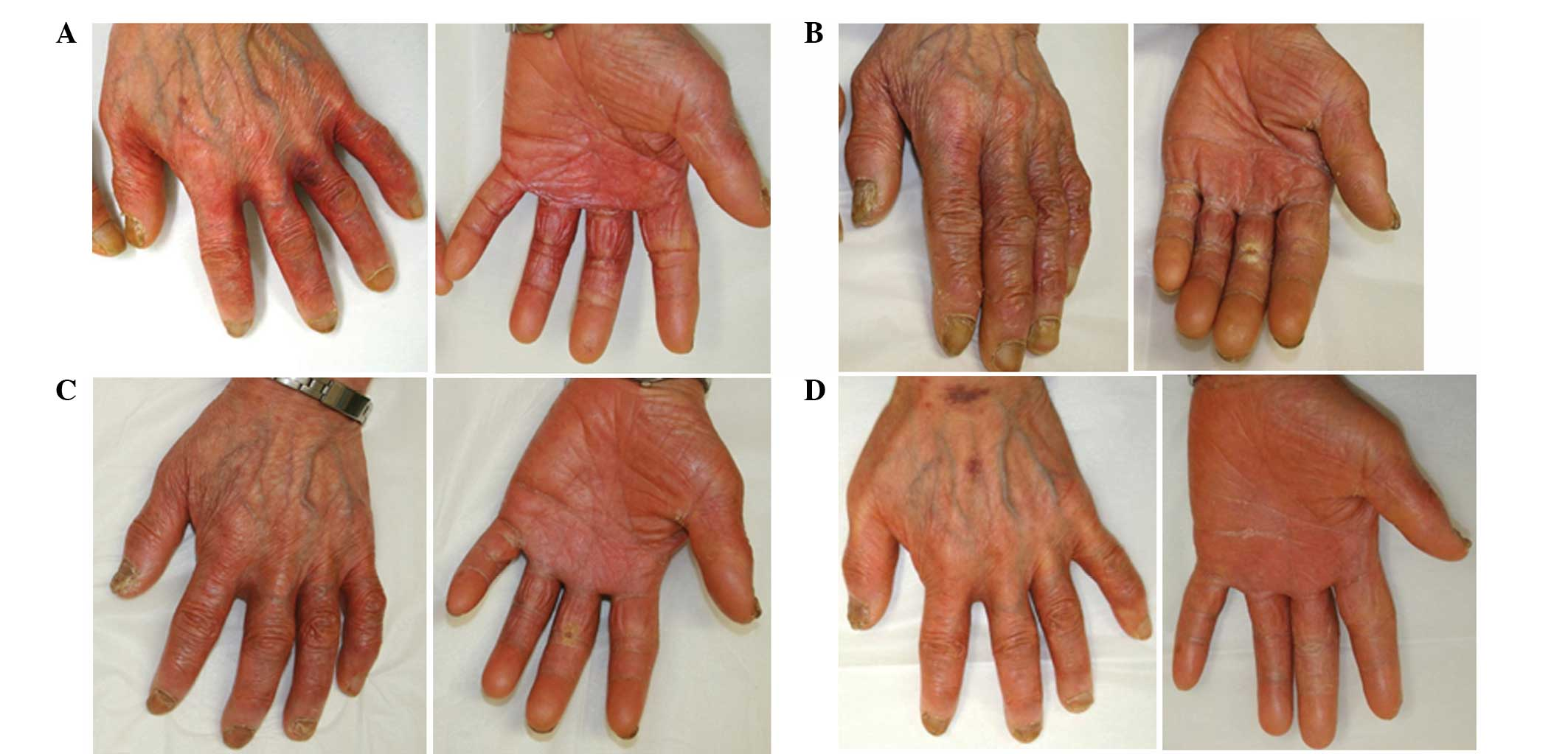 hand ankle trouble evoked by simply chemotherapy a instance study