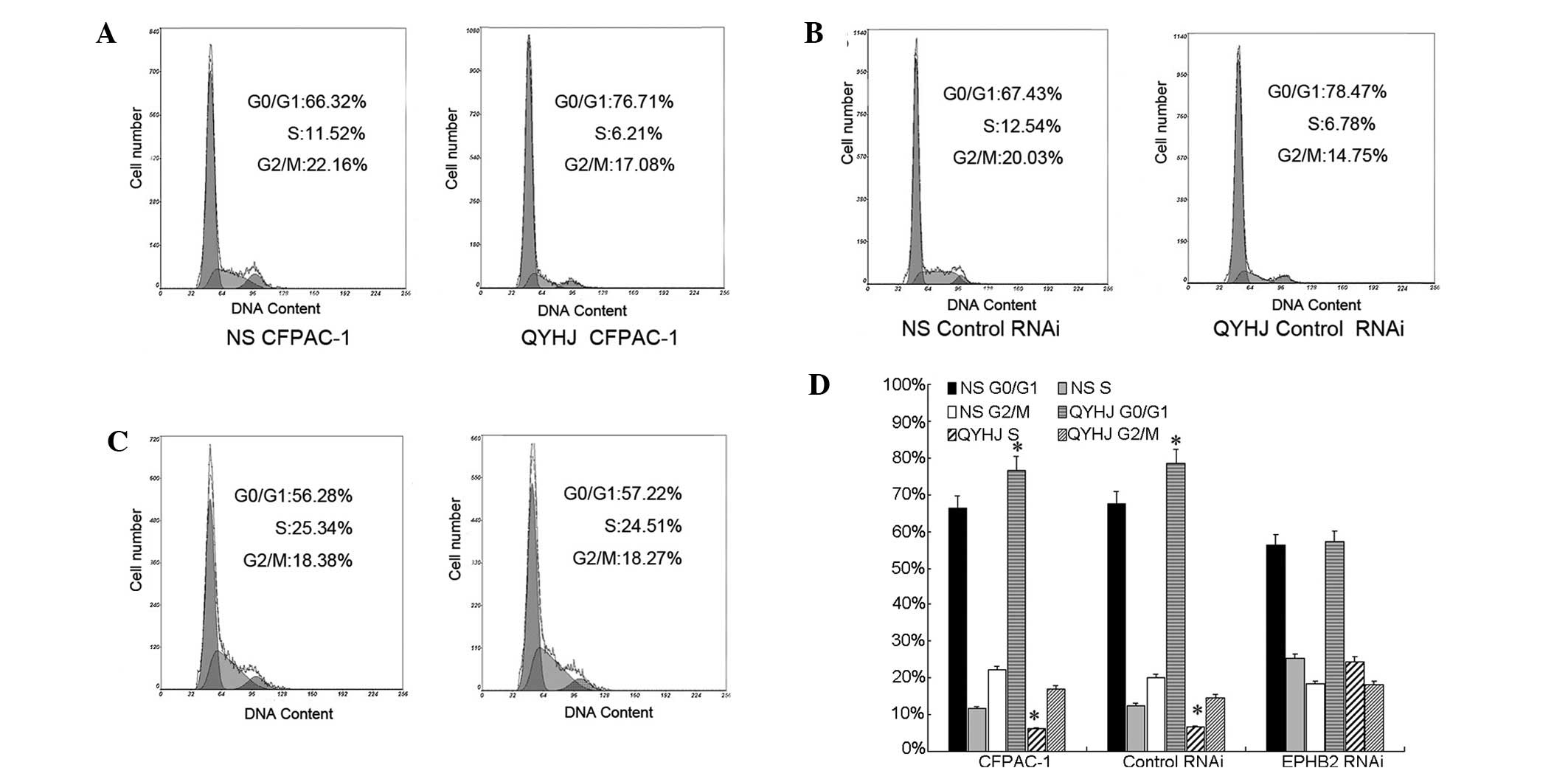 High Expression Of Erythropoietinproducing Hepatoma Cell Line B2 Micro Motion Wiring Diagram Figure 2 Qyhj Suppresses Tumor Growth Through Inhibiting The Cycle Process Ac Was Analyzed In Cfpac 1cfpac 1 Control Rnai And