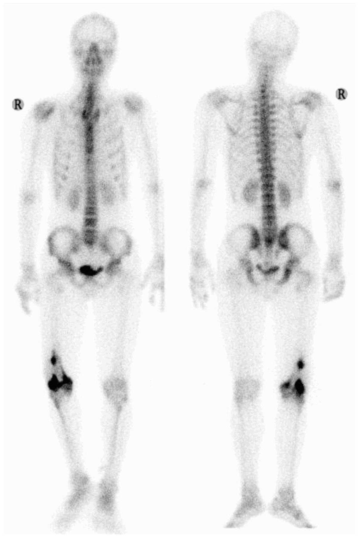 Tolle Pylorusklappe Bilder - Menschliche Anatomie Bilder ...