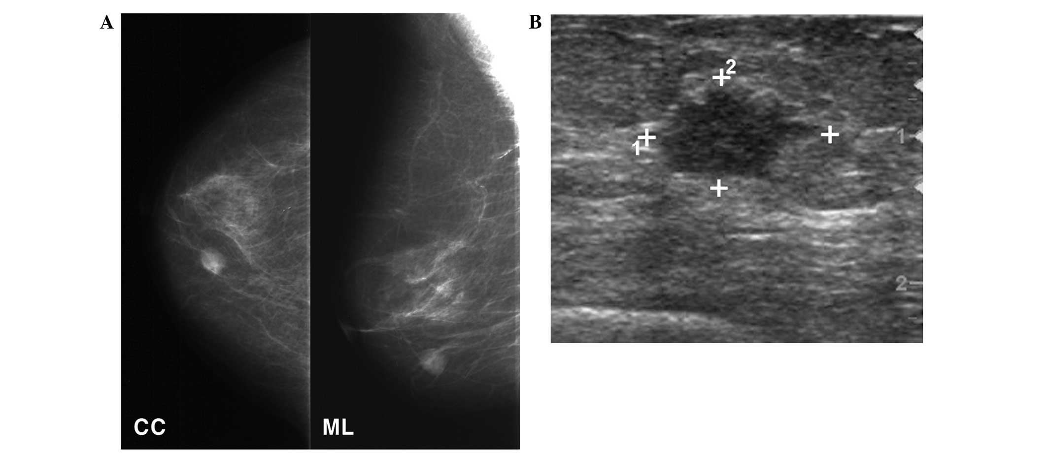 B Ultrasonography Showing A 1 3 Cm Speculated Irregularly Shaped Hypoechoic Min Thet