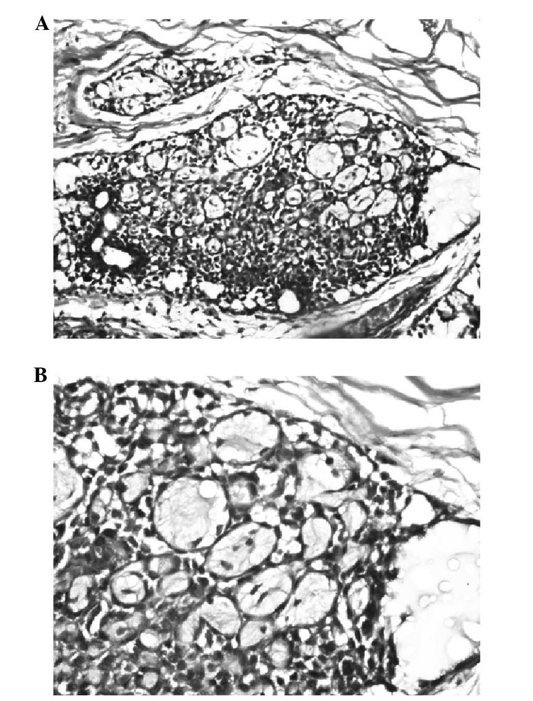 Bartholin Gland Carcinoma A Case Report