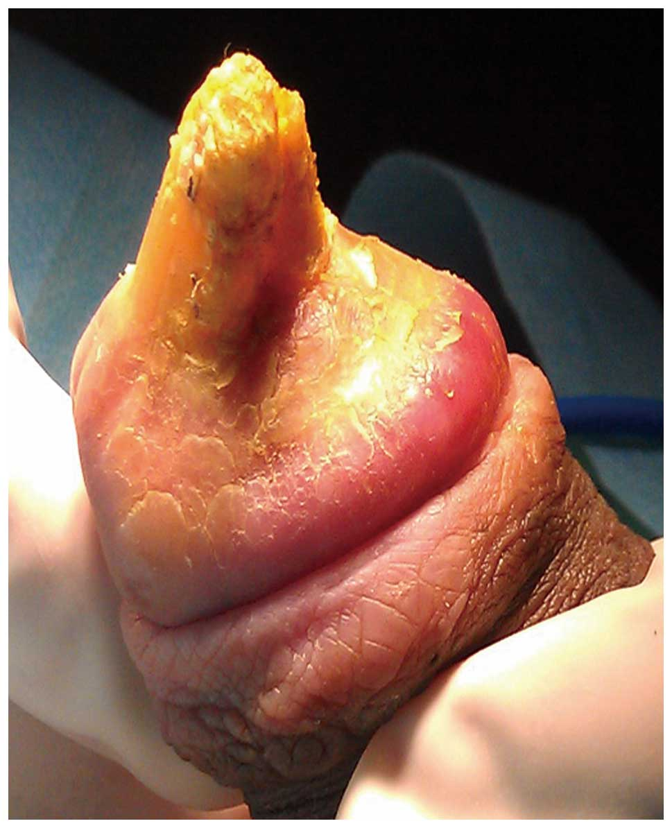 Maggots in cock