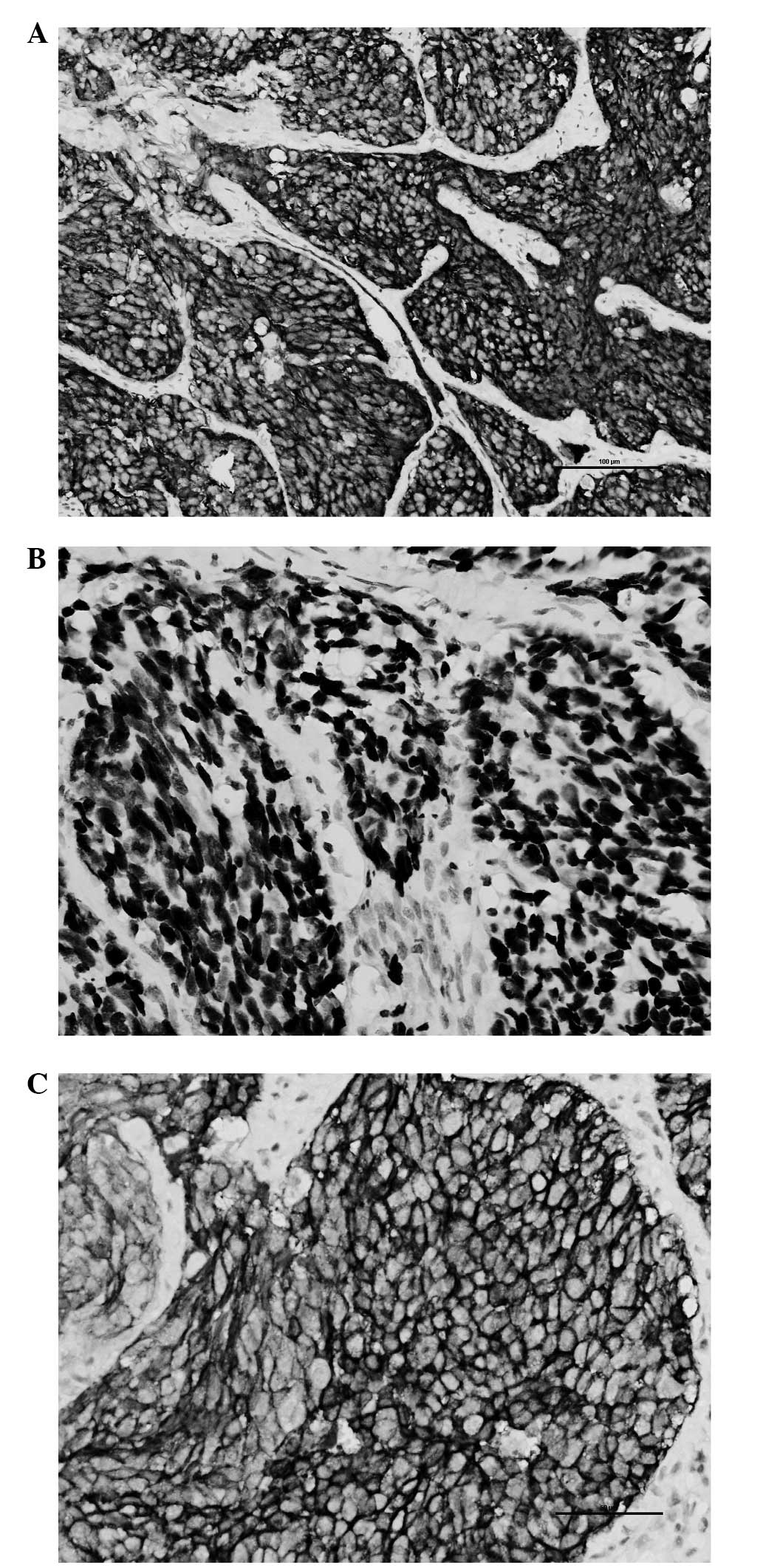 Article review of thyroid glands