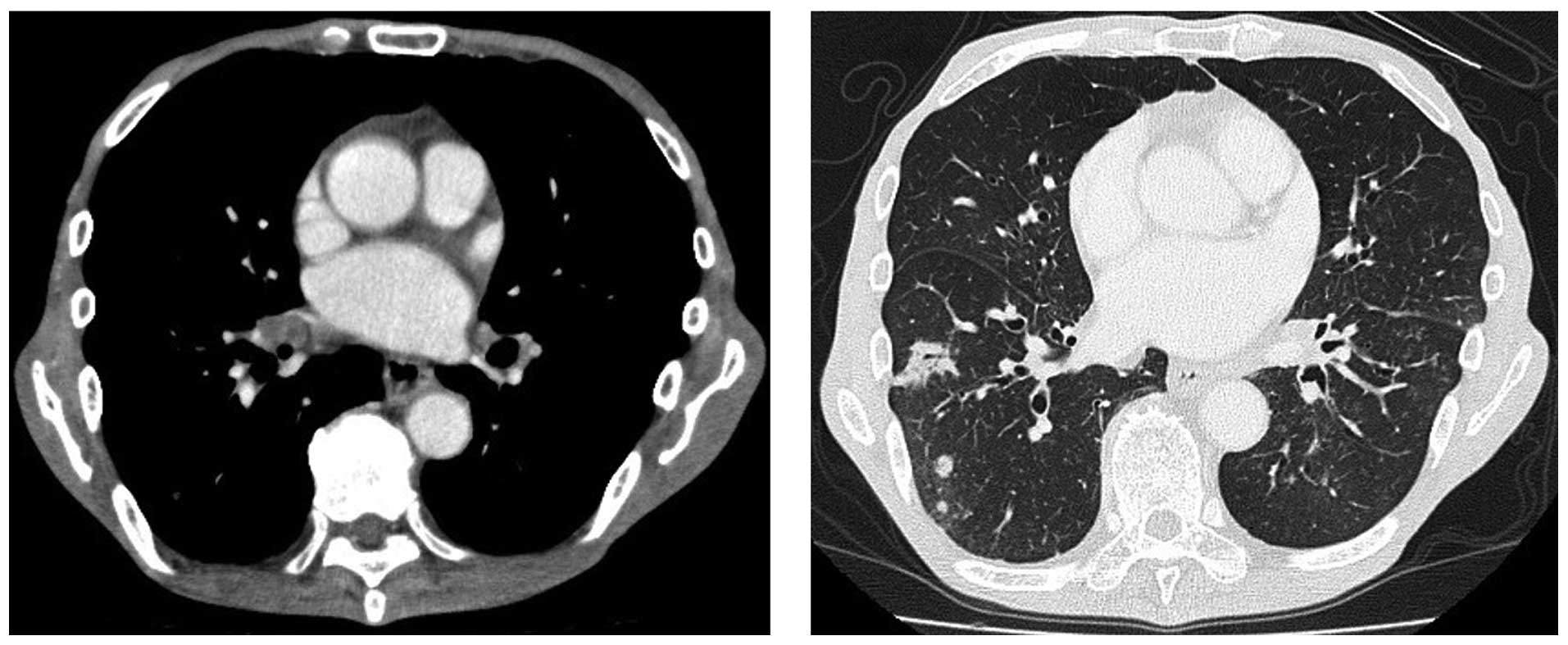Superficial Type Endobronchial Metastases From Colon Cancer A Case Report