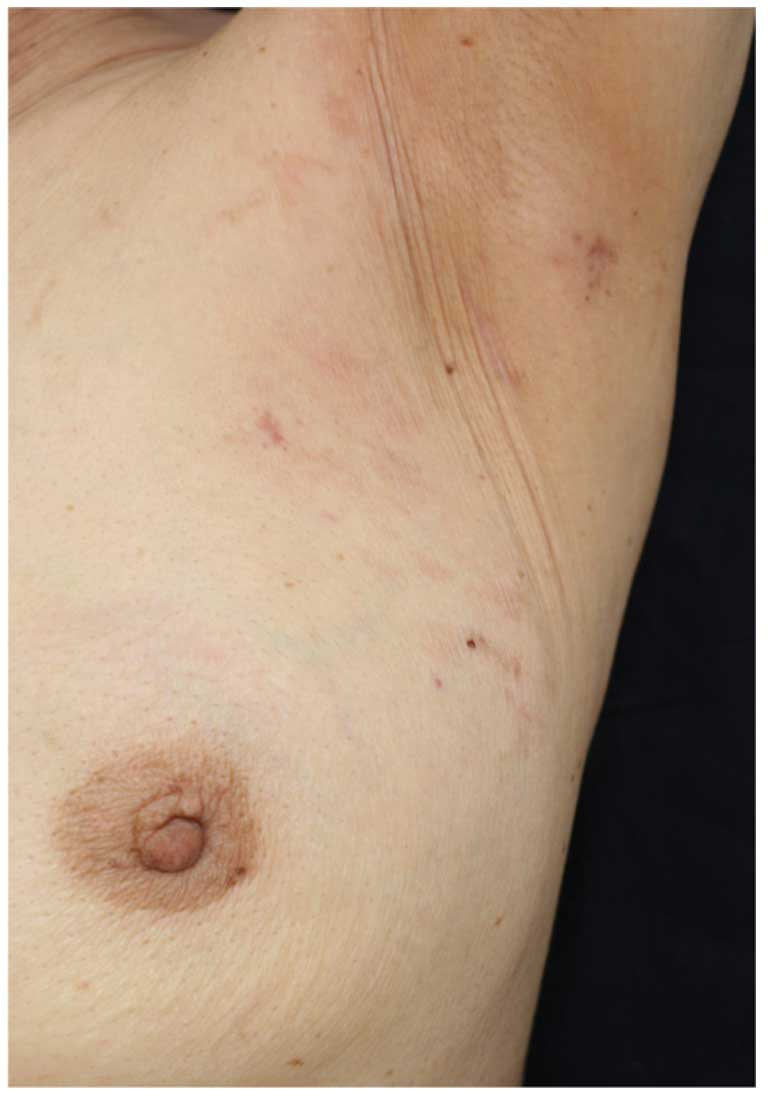 Inflammatory breast cancer lapatinib