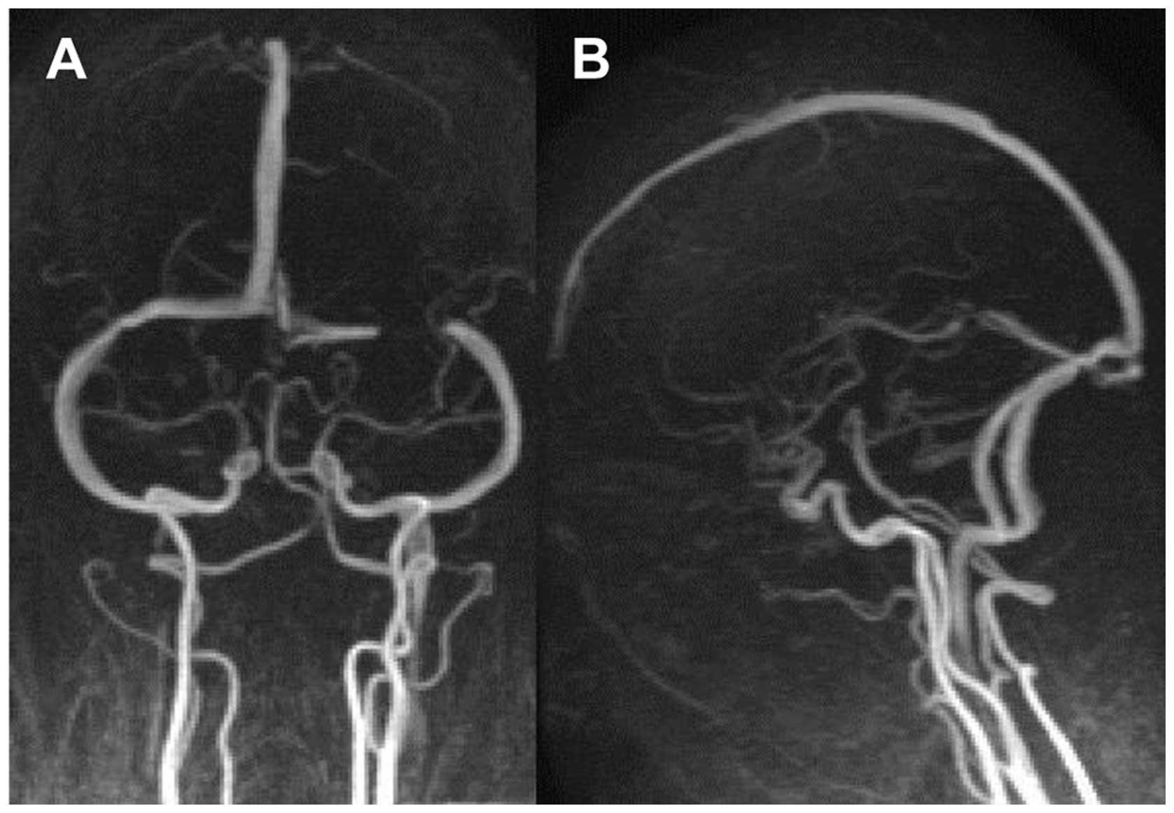 Cerebral Venous Sinus Thrombosis Concomitant With Leptomeningeal