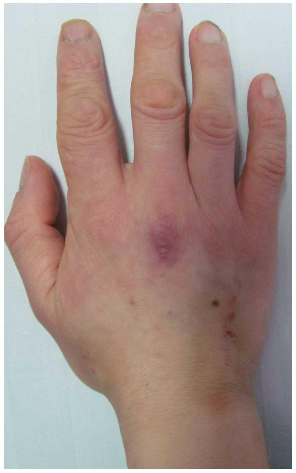 Upper GI/ Colonoscopy results - Crohns Disease