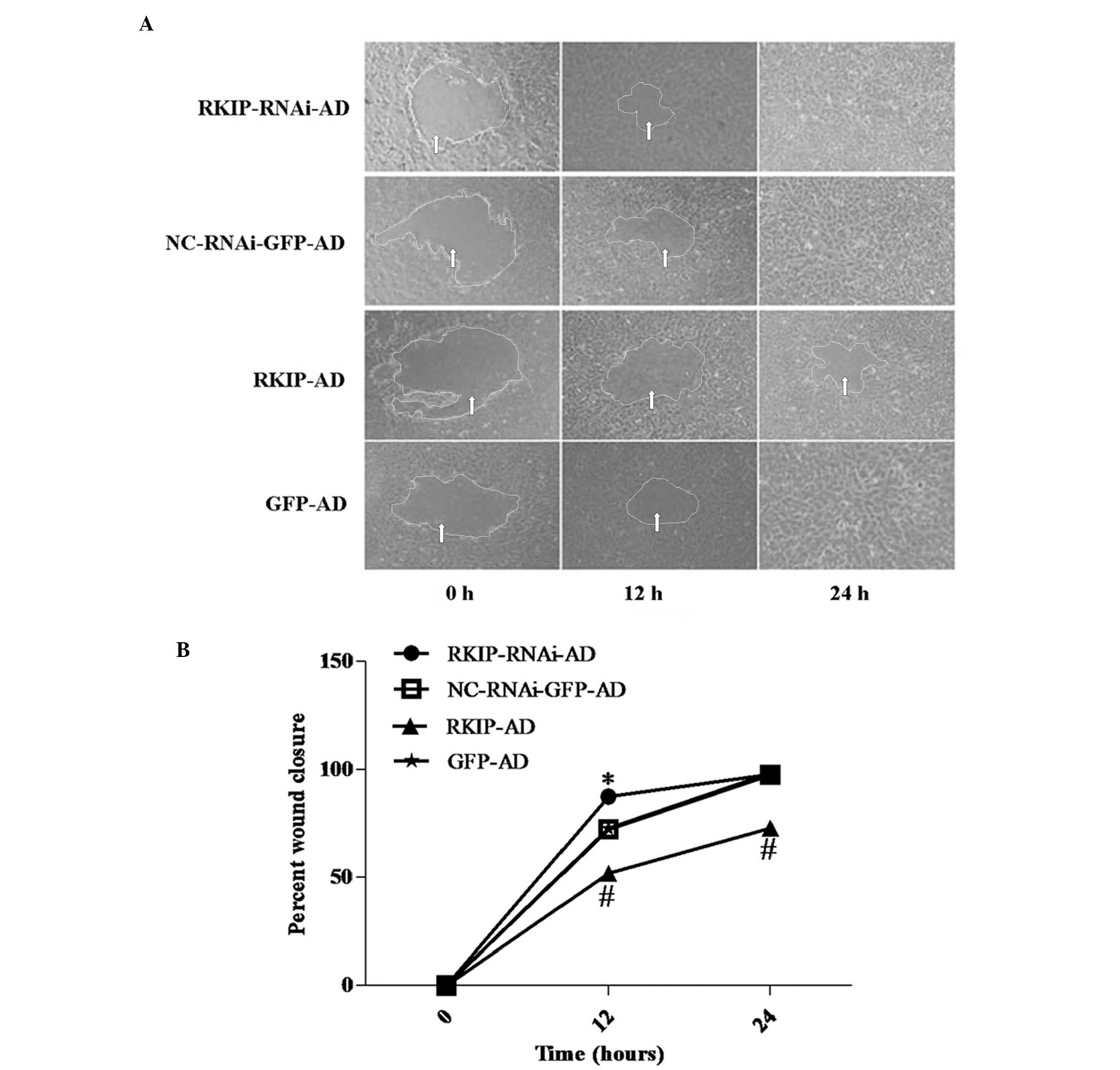 Raf kinase inhibitor protein inhibits cholangiocarcinoma cell ...
