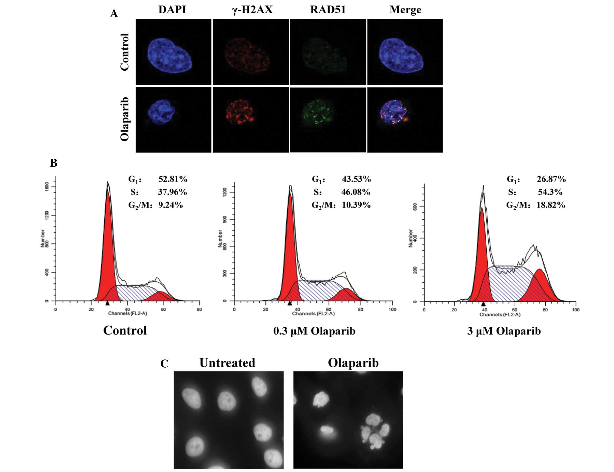 JF-305, a pancreatic cancer cell line is highly sensitive