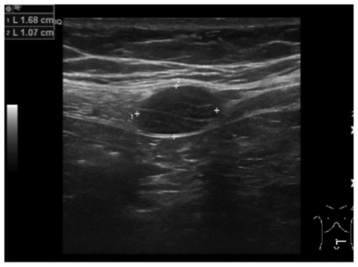 Symptomatic Schwannoma Of The Abdominal Wall A Case