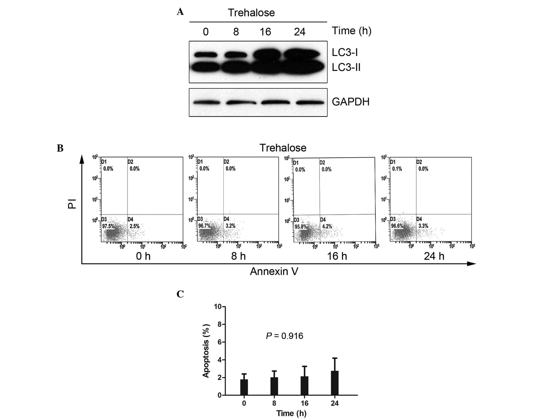 Interferon-regulatory factor-1 (IRF1) regulates