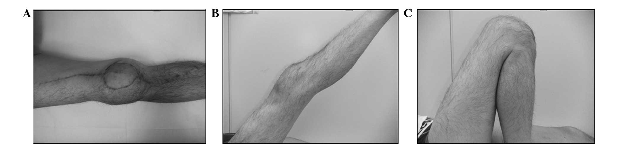 Functional Reconstruction Of The Knee Extension Mechanism Following