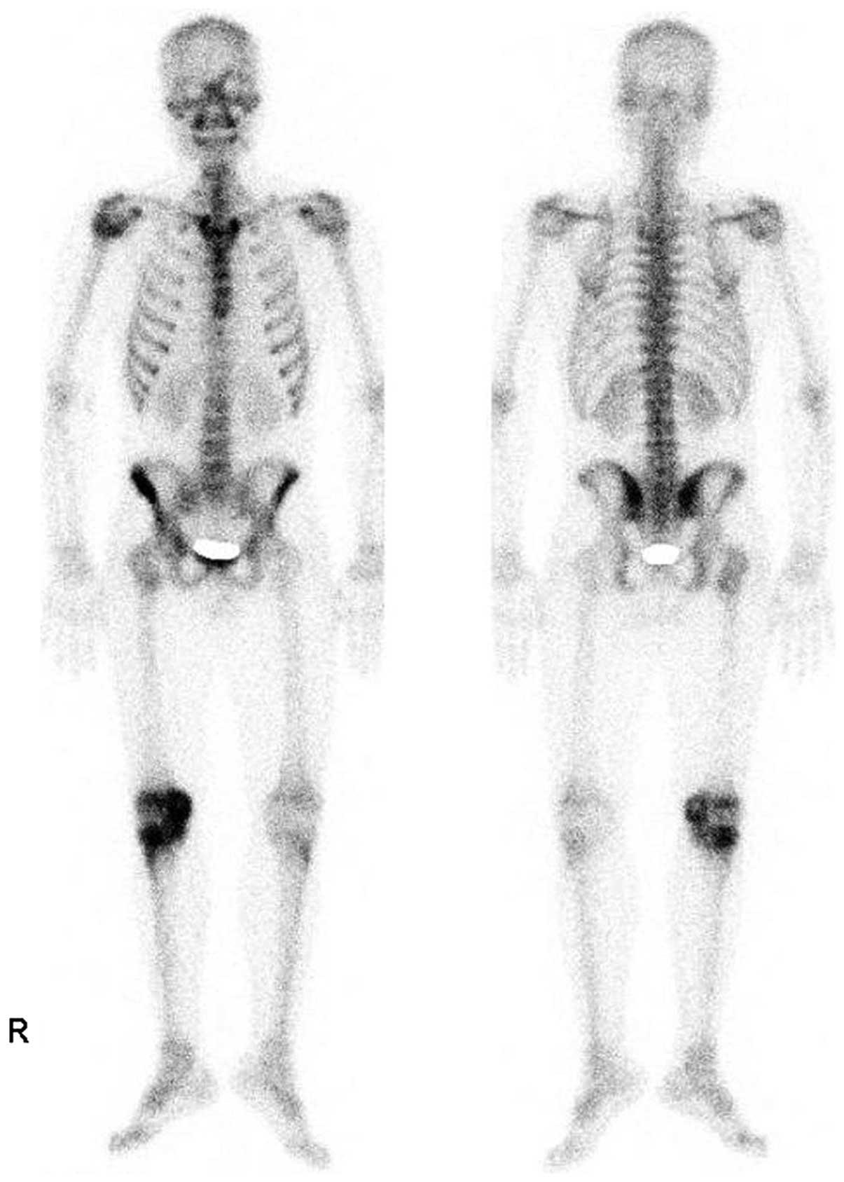 Bone Multicentric Epithelioid Hemangioendothelioma Of The Lower And