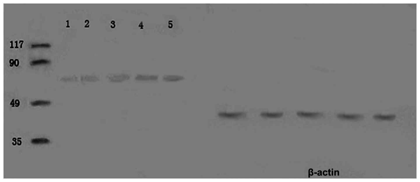Expression And Significance Of Glucose Regulated Protein 78 In Human