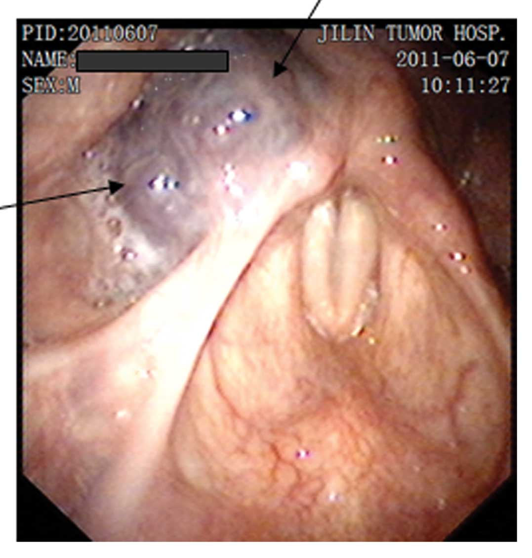 Resection of a laryngeal hemangioma in an adult using an ultrasonic ...