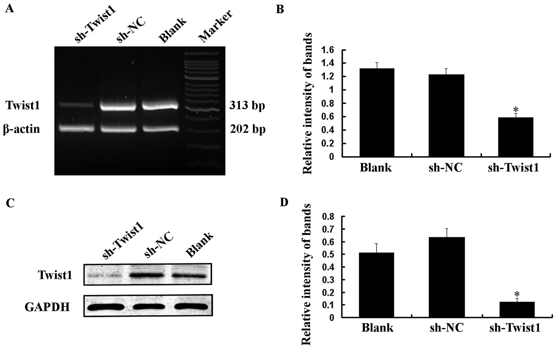 Short-hairpin RNA against aberrant HBBIVSI-110(G>A) mRNA
