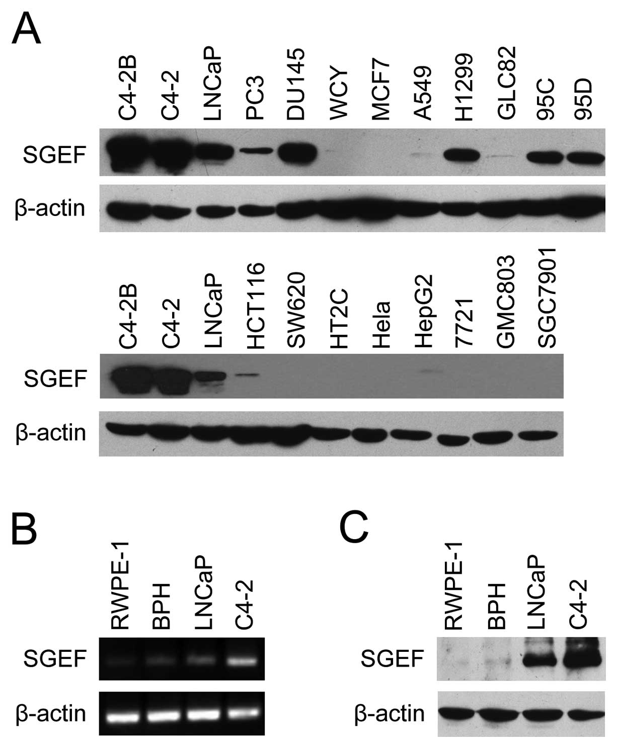 sgef is overexpressed in prostate cancer and contributes to prostate(a) sgef expressions were found to be limited to the prostate cancer cell lines (c4 2b, c4 2, lncap, pc3 and du145 cell lines) and part of the lung cancer