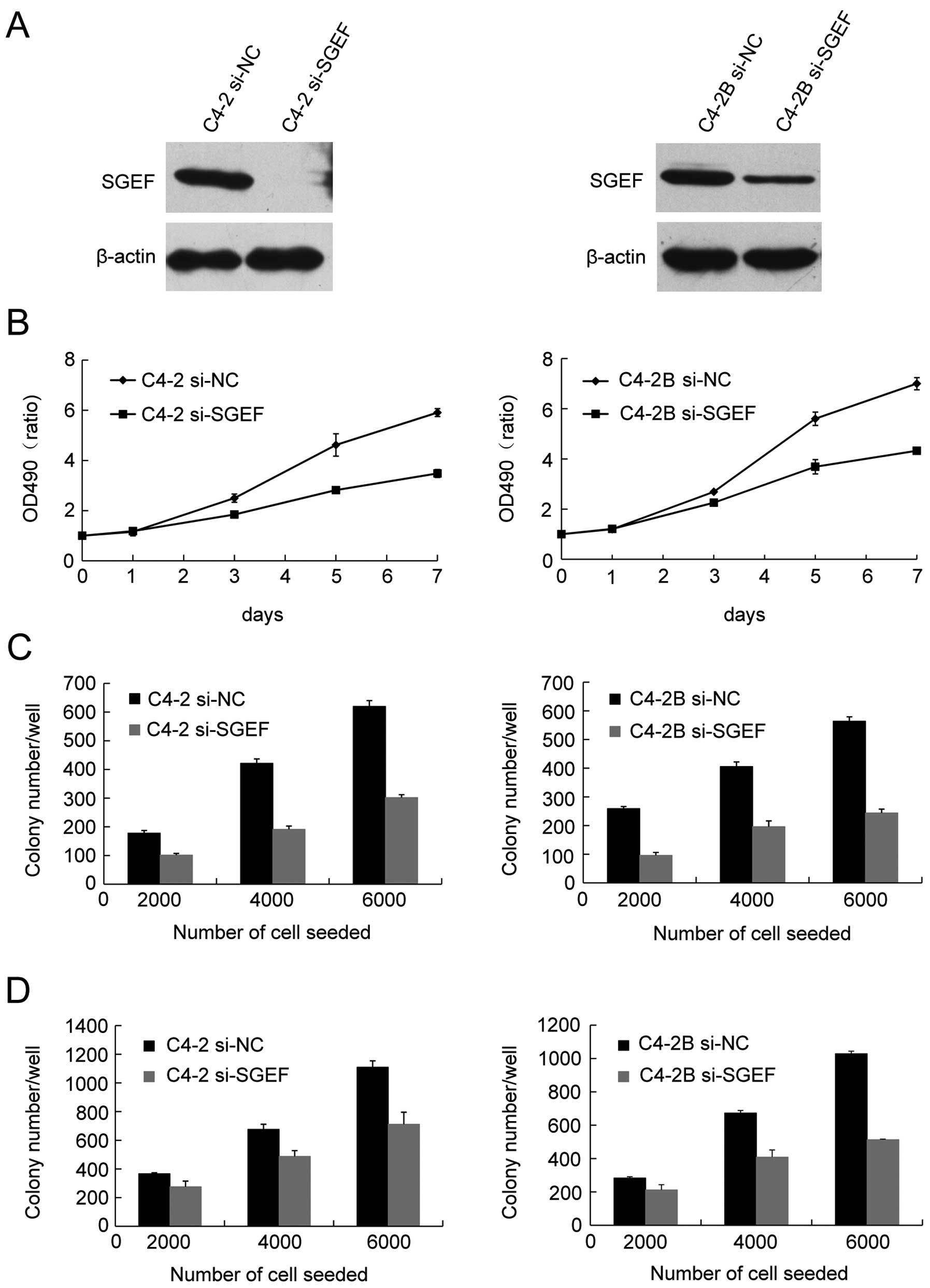 sgef is overexpressed in prostate cancer and contributes to prostateeffects of reduced sgef expression on prostate cancer cell growth (a) c4 2 or c4 2b cells were infected with lentivirus containing control or sgef specific