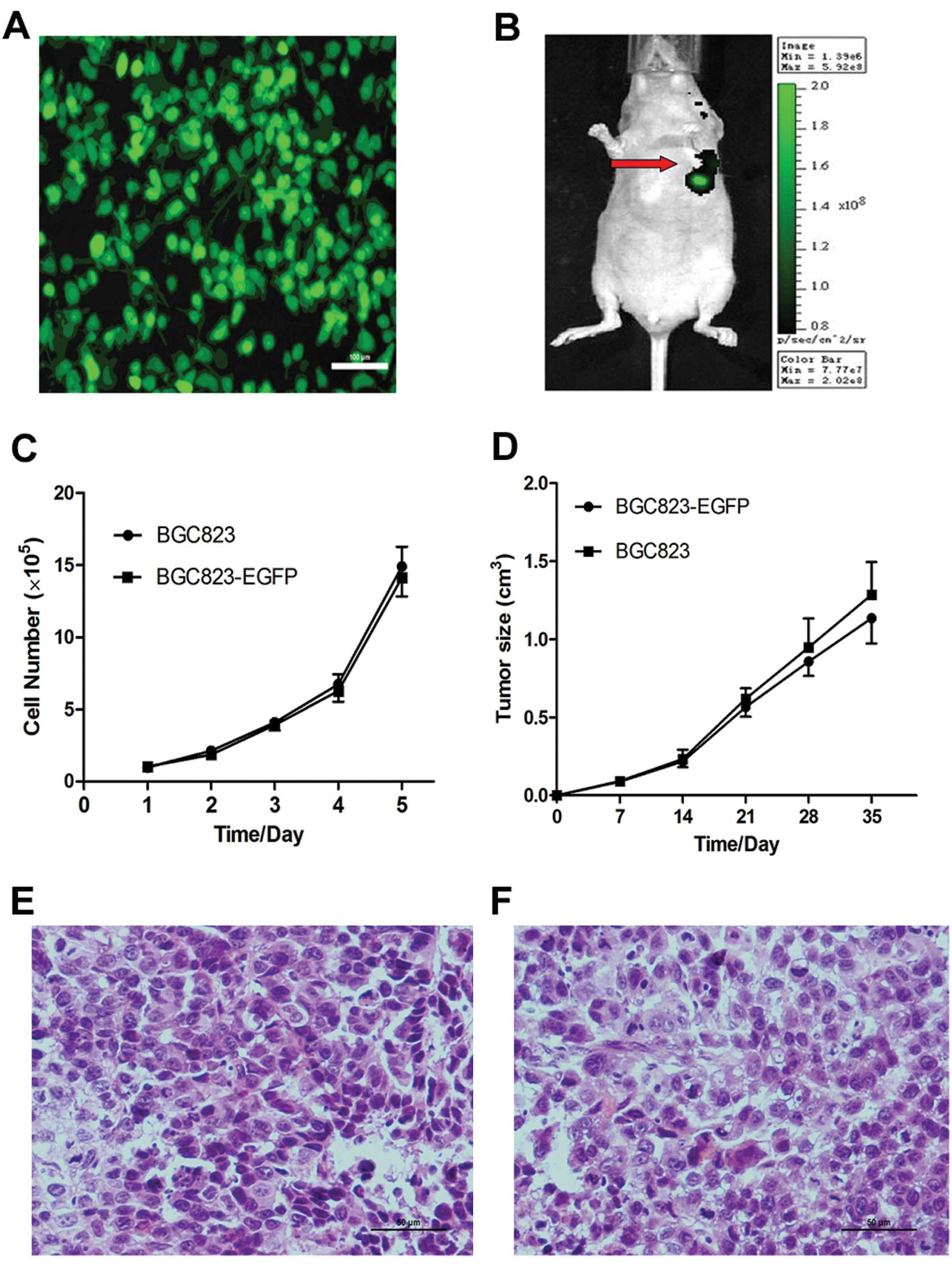 In Vivo Distribution And Antitumor Effect Of Infused