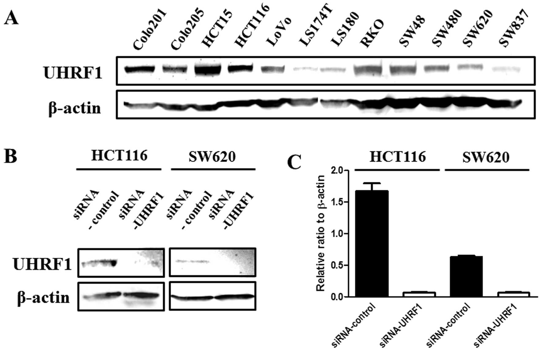 Uhrf1 Expression Is Upregulated And Associated With