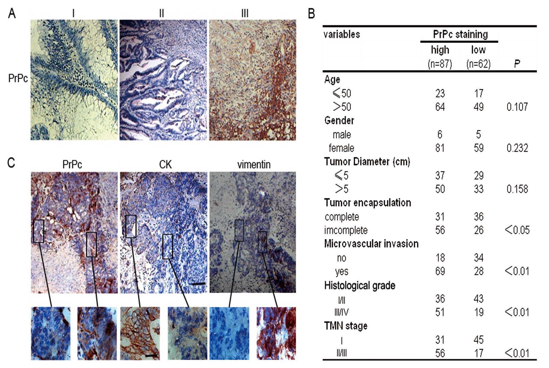 Cellular Prion Protein Accelerates Colorectal Cancer Metastasis Via The Fyn Sp1 Satb1 Axis